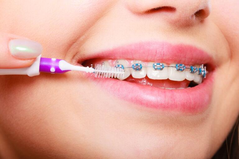 seeing best orthodontist in encino