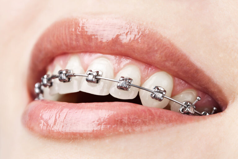 Closeup of a person with Traditional Braces in Encino
