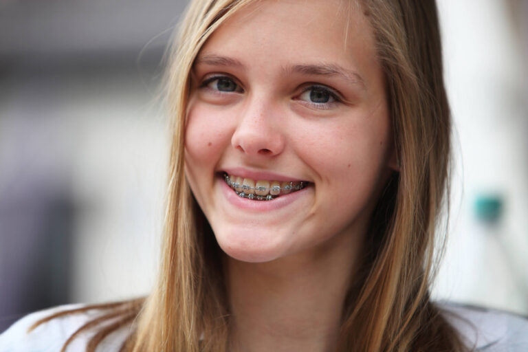 teenage girl with Affordable Orthodontics in Woodland Hills