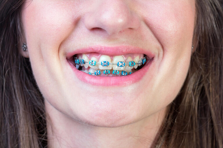woman wearing teal colored metal Braces Woodland Hills